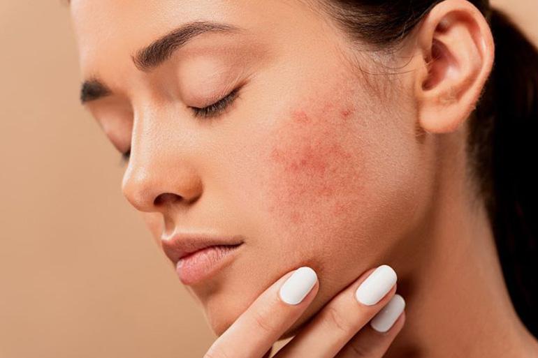 Manchas na pele são uma das principais preocupações estéticas. As mais comuns surgem no rosto devido à exposição solar e ao envelhecimento.
